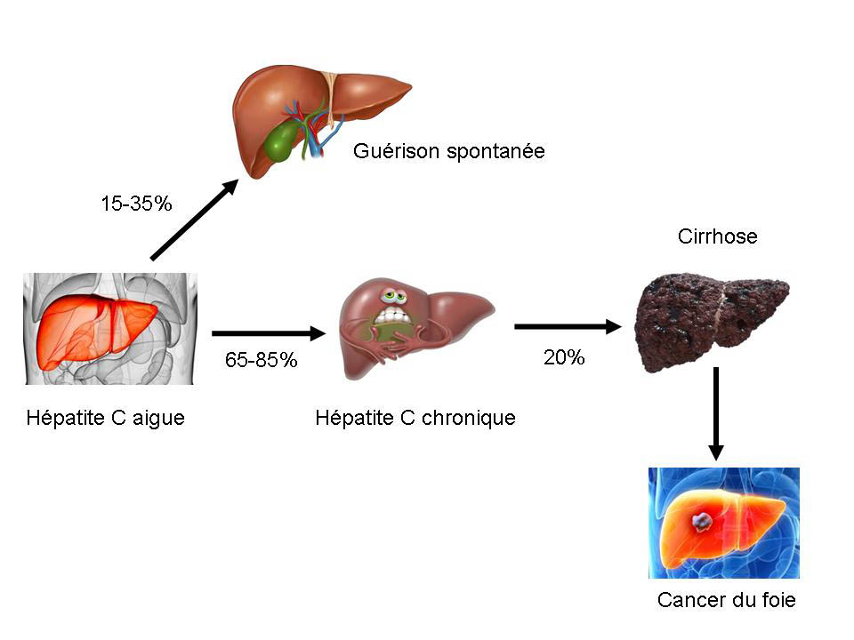 gastro-enterologie pathologie Hépatite C