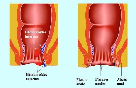 gastro-enterologie pathologie Pathologie Proctologique