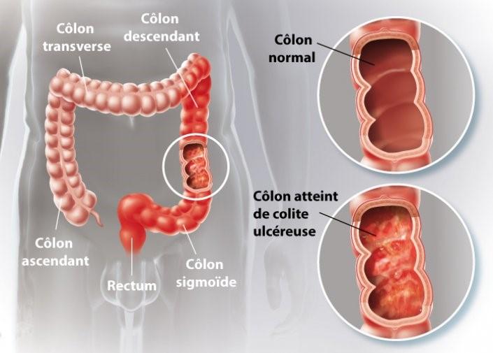 gastro-enterologie pathologie Rectocolite Hémorragique