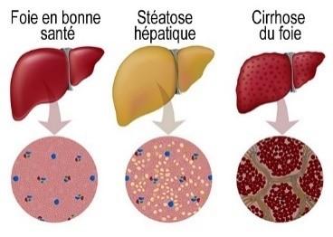 gastro-enterologie pathologie Stéatose Foie Gras