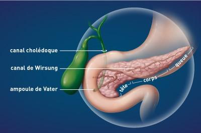 gastro-enterologie pathologie cancer pancreas