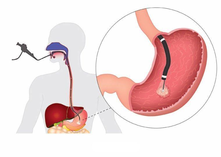 gastro-enterologie pathologie reflux gastro